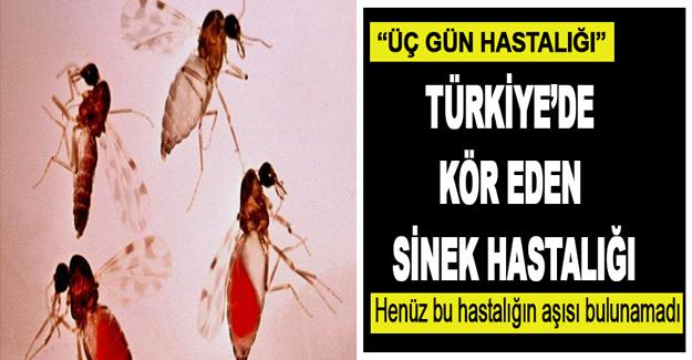 Türkiye'de Kör Eden Sinek Hastalığı