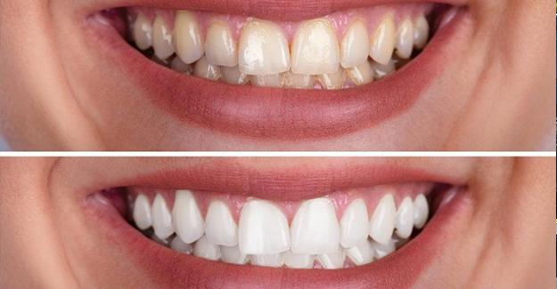 Covid-19 ağız ve diş sağlığı bakımını olumsuz etkiledi