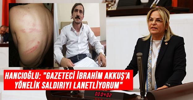 Hancıoğlu'ndan Saldırıya uğrayan gazeteciye destek