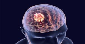 Beyin tümörünün 6 erken belirtisi!