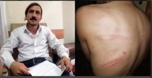 Yerel gazeteciyi Belediyede dövdüler