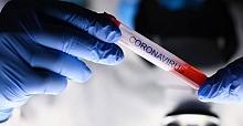 Koronavirüs'de bu gün!